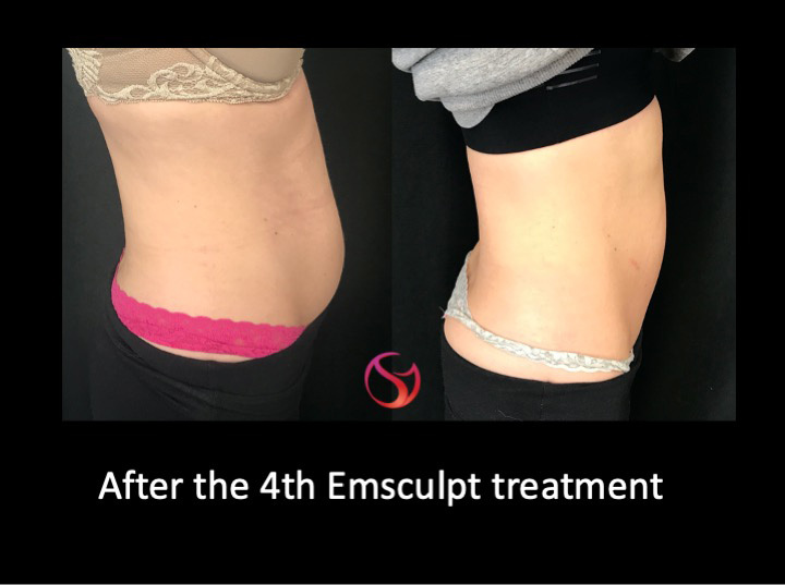 Emsculpt-before-after-2