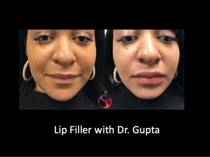 Lip-filler-AM