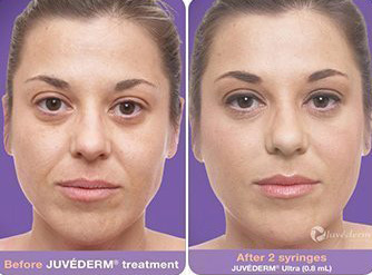 juvederm-after-before