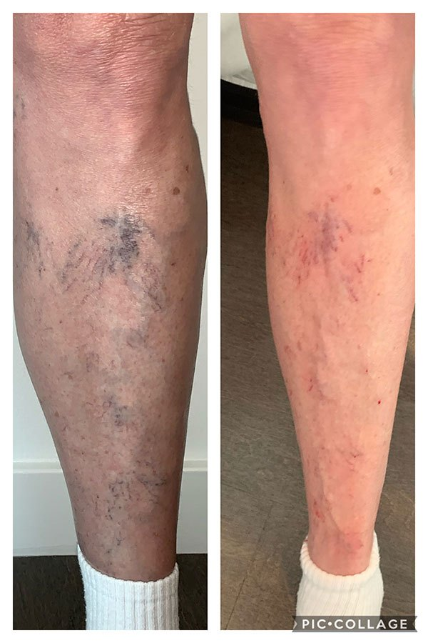 Sclerotherapy-right-after