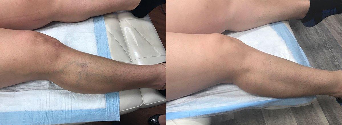 leg-blue-veins