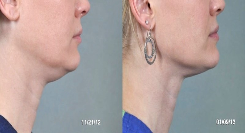 Chin-Thermilift