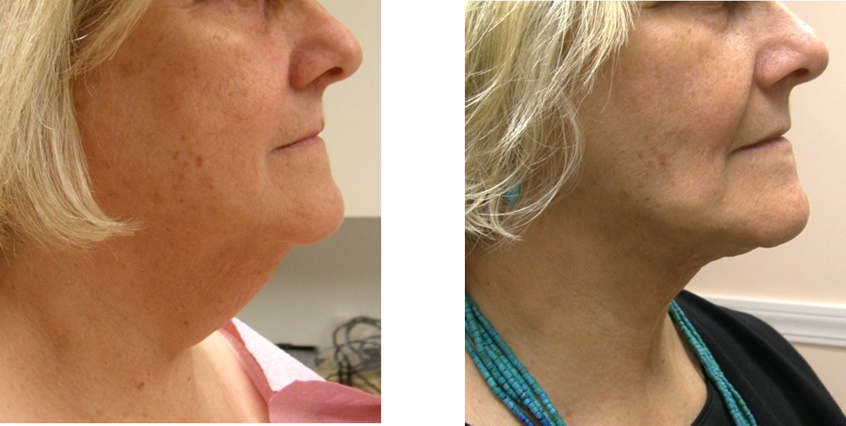 Therlift-before-after