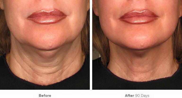 ThermiLIft-before-and-after