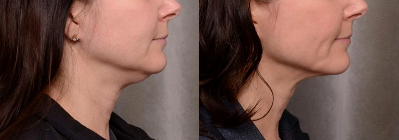 neck-tightening