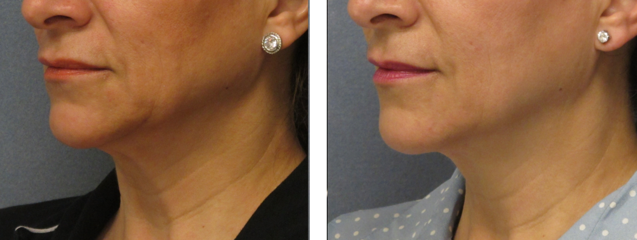 thermi-neck-bands-before-after