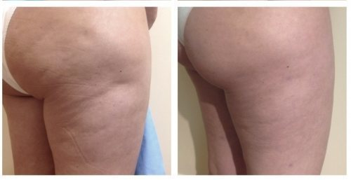thermirf-thigh-cellulite-reduction