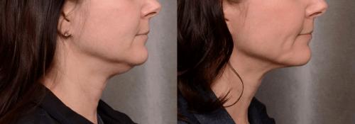 thermitight-neck