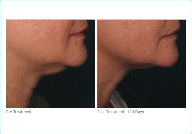 ultherapy_lower_face_2-1-1
