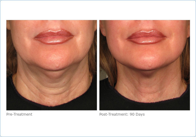 ultherapy_lower_face_2-7