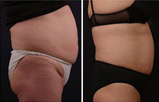 vanquish-fat-removal-before-and-after-procedure