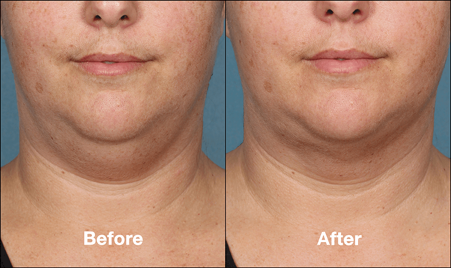 kybella-before-and-after