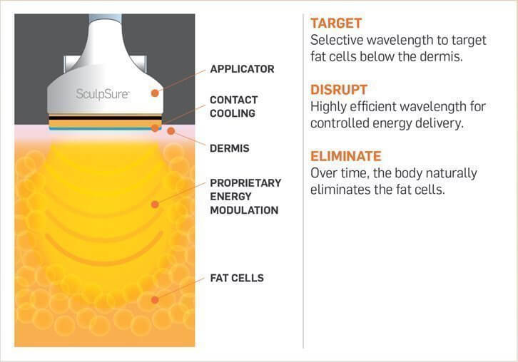 sculpsure-melts-fat