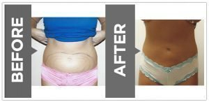 , Vaser Liposuction