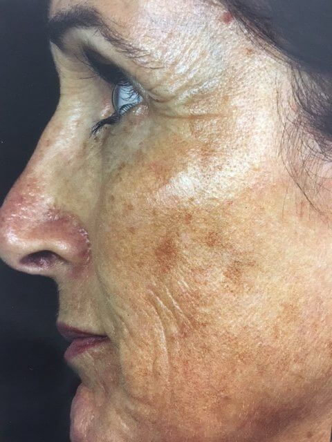 , Fraxel Skin Resurfacing Procedures