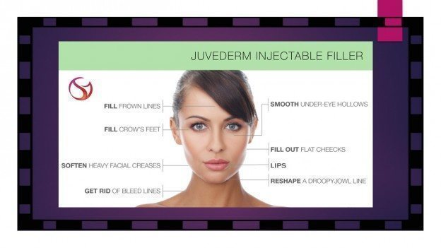 Juvederm-injection-areas
