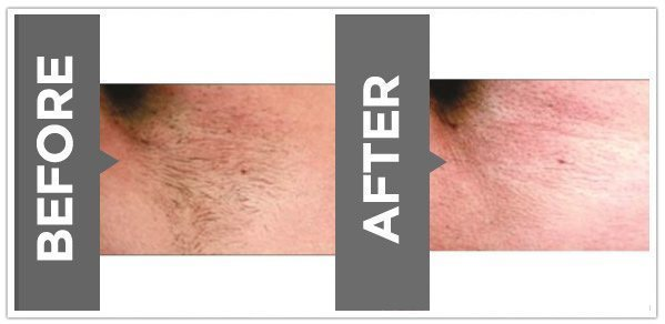 , Laser Hair Removal