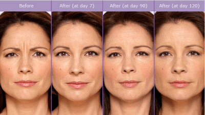 SCG-Skin-Before-After-from-Botox-Alecia-400x225