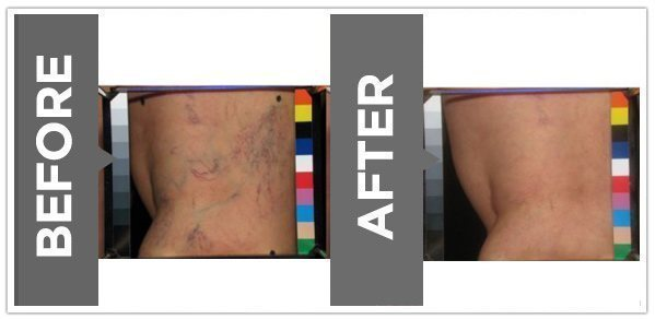 Sclerotherapy-before-and-after