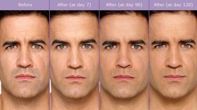 botox-before-after-man-400x224