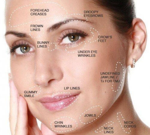 botox-face-breakdown