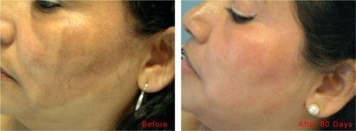 cosmelan-depigmentation