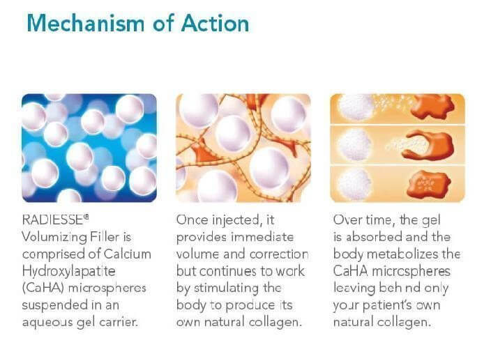radiesse-mechanisms-of-action