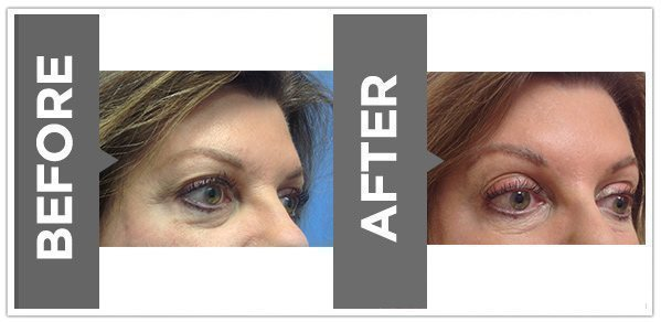 ultherapy_after_before_11