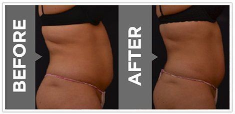 vanquish-fat-removal-before-after