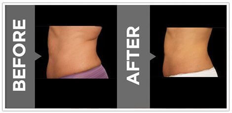 vanquish-fat-removal-before-and-after-results
