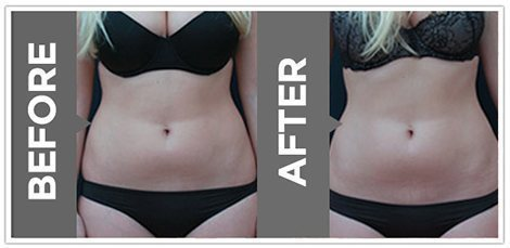 vanquish-fat-removal-before-and-after