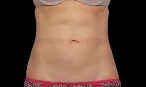 CoolSculpting®, CoolSculpting