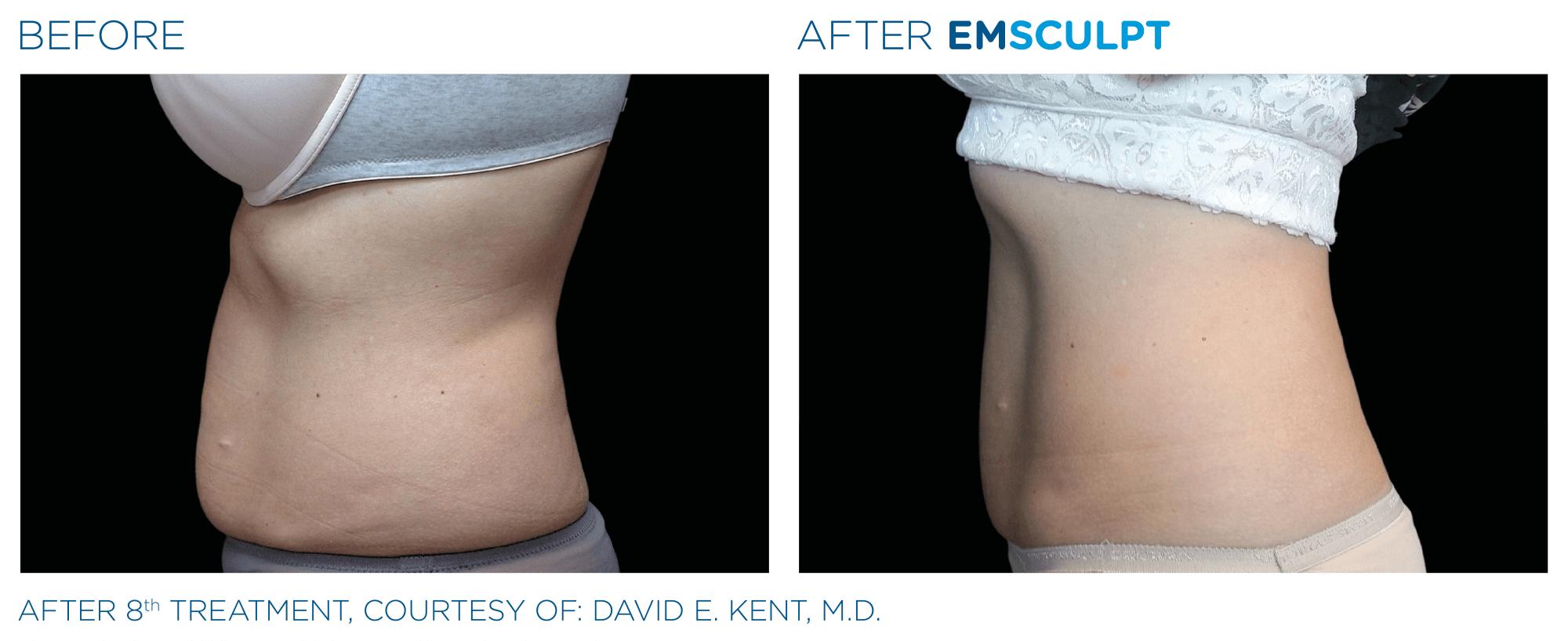 emsculpt before & after