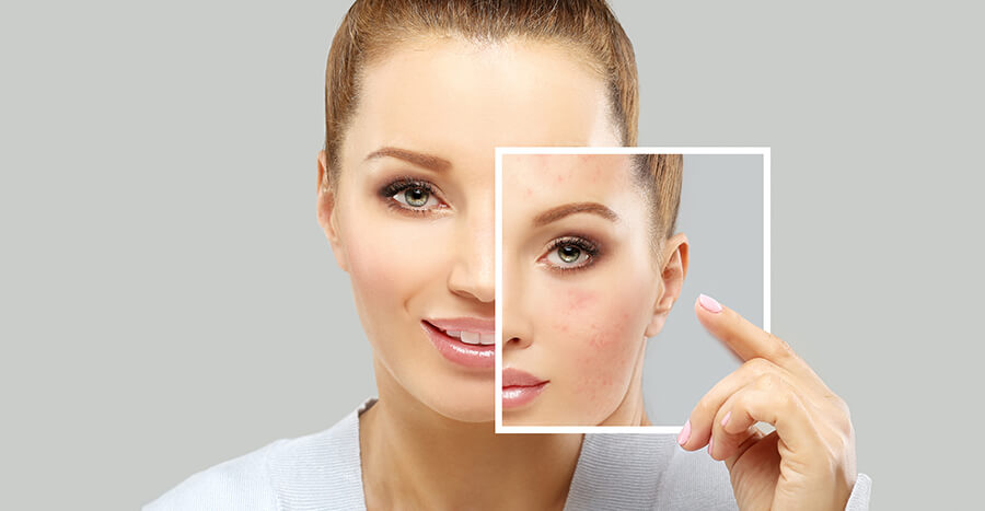 Reasons Why Early Acne Care Is Important