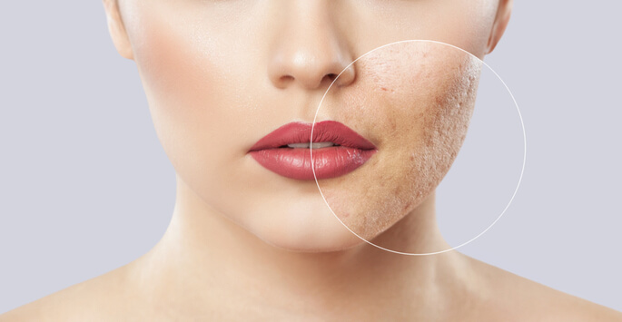 Take the Next Step with Acne Scar Removal