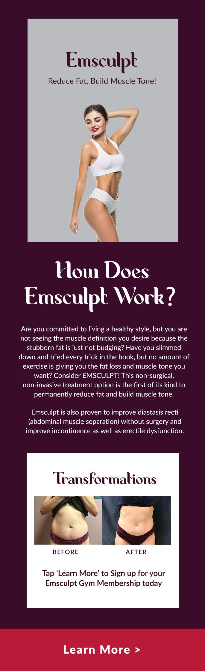, How Does Emsculpt Work?
