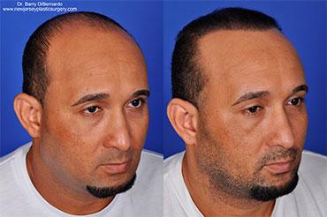 , Hair Restoration with SmartGraft