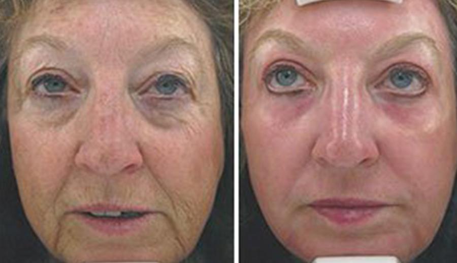 , Aesthetic Facial Services
