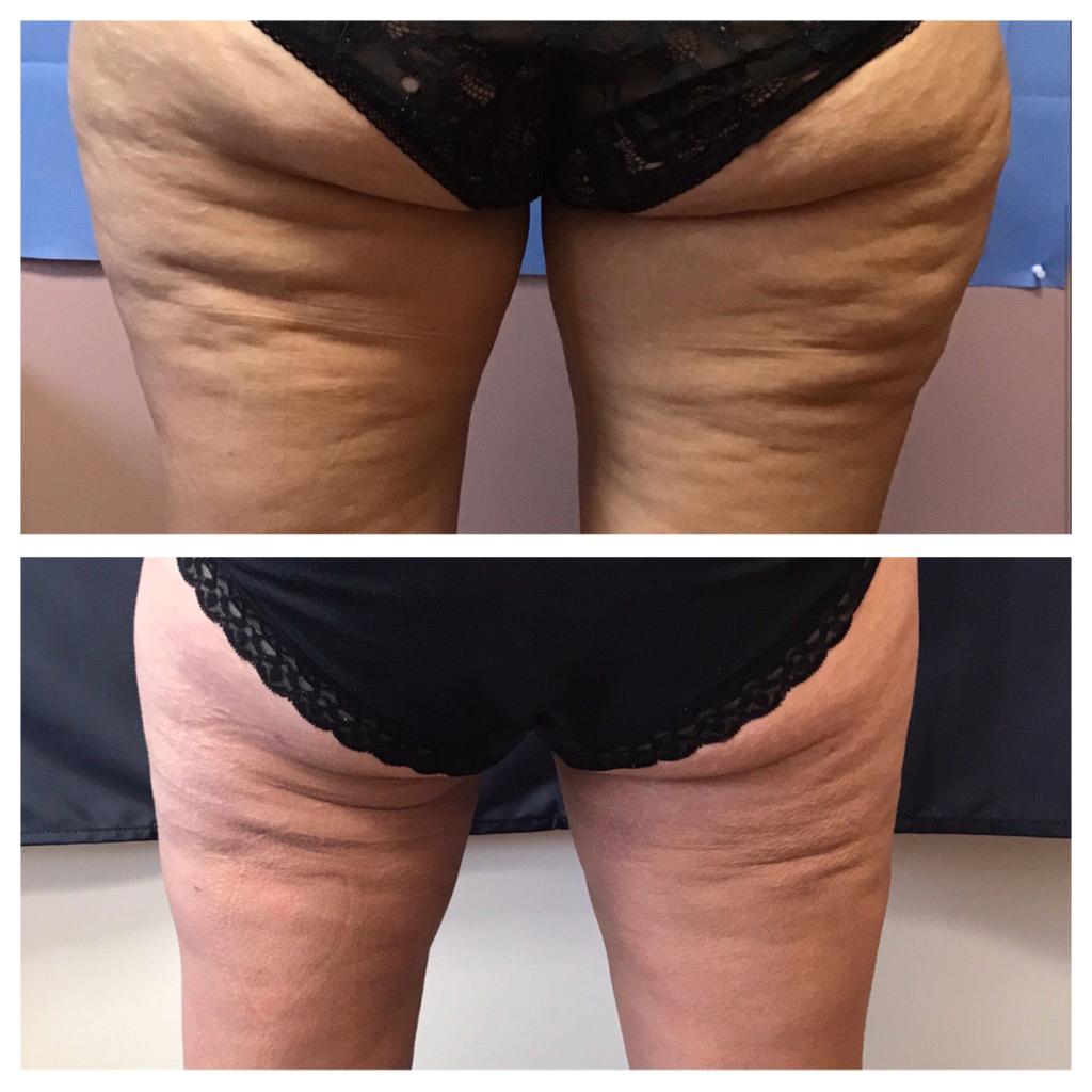 , Exilis Ultra Fat Reduction Procedure in Cincinnati, OH