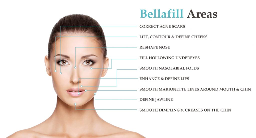 , Bellafill Treatments